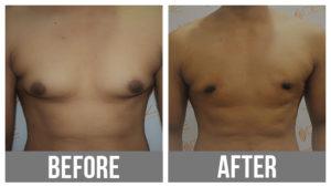 male breast enlargement treatment