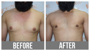 Gyne Before After Male Breast Liposuction