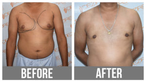 Gyne Before After breast reduction surgery
