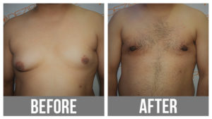 Gynecomastia Surgery Before And After In Pune