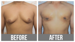 Male Chest Liposuction Before And After In Pune