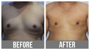 Gynecomastia Surgery Before After In Pune