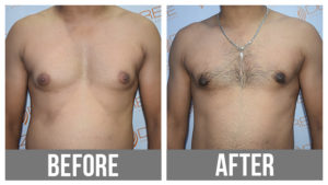 gynecomastia surgical treatment